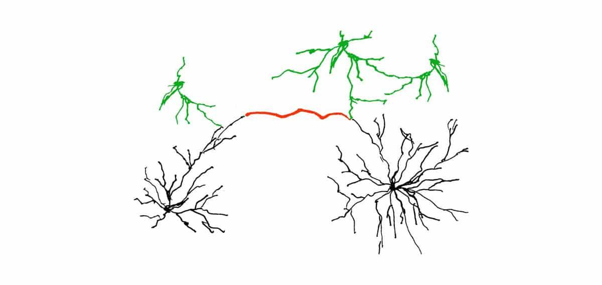Zwangsgedanken loswerden – erweiterte Synapsen